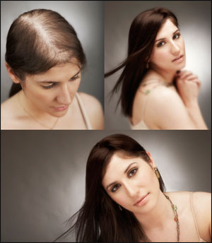 womens-hair-loss